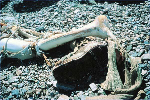 mallory-legs